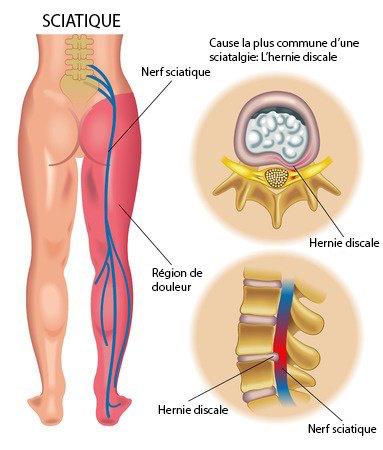 Nerf sciatique avec sténose spinale