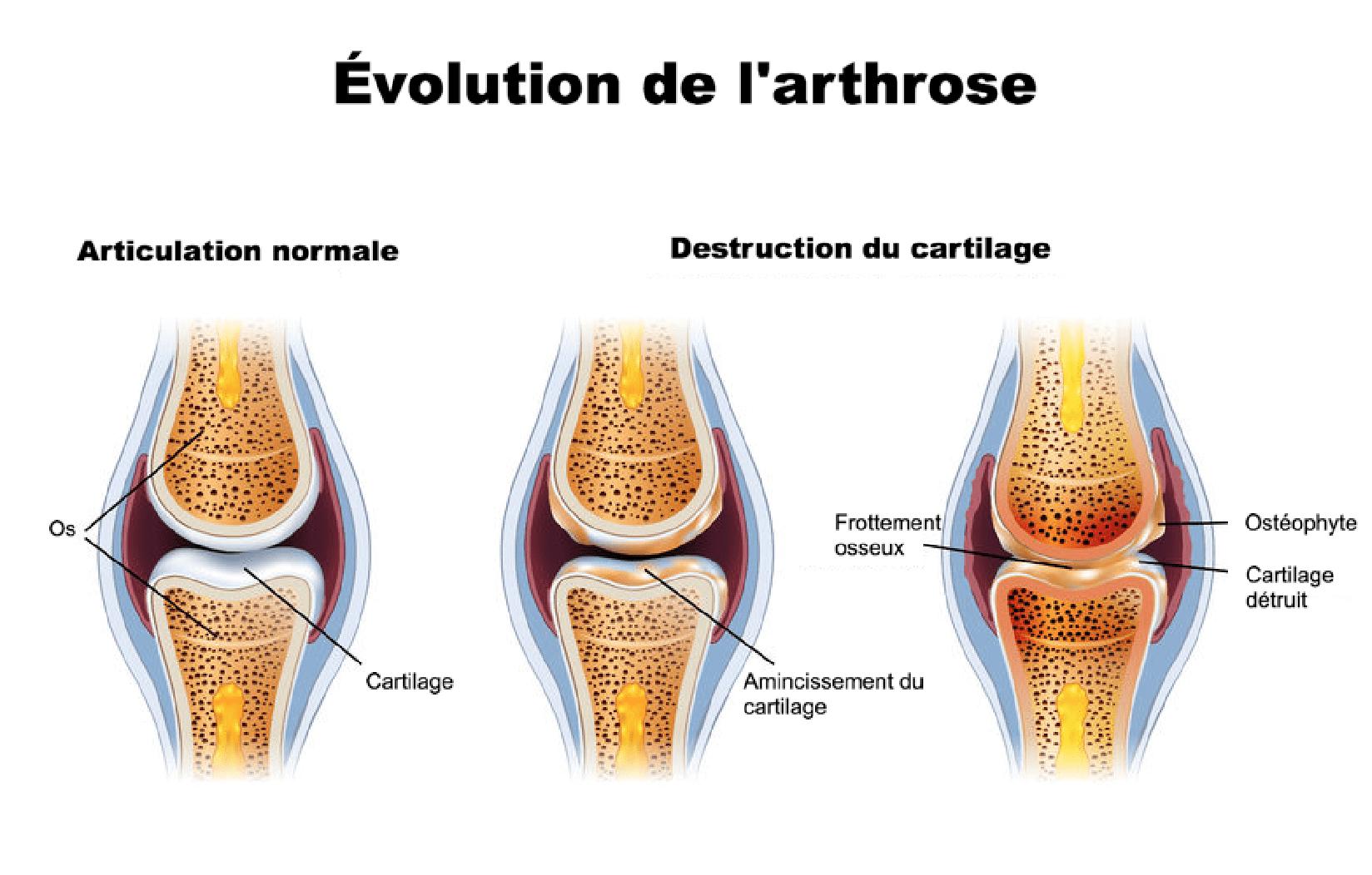 L'arthrose : Cause , Symptômes , Traitement , Prévention