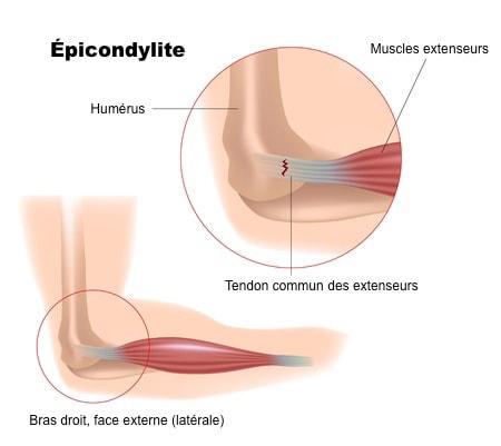 Anatomie epicondylite