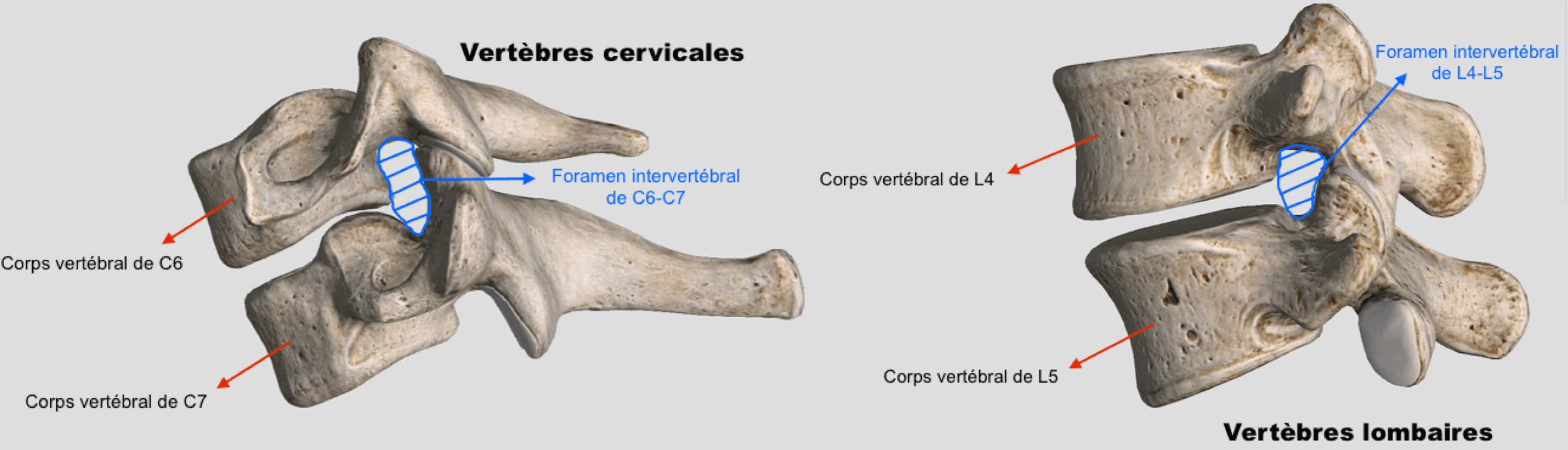 Anatomie foramen intervertebral pour stenose foraminale