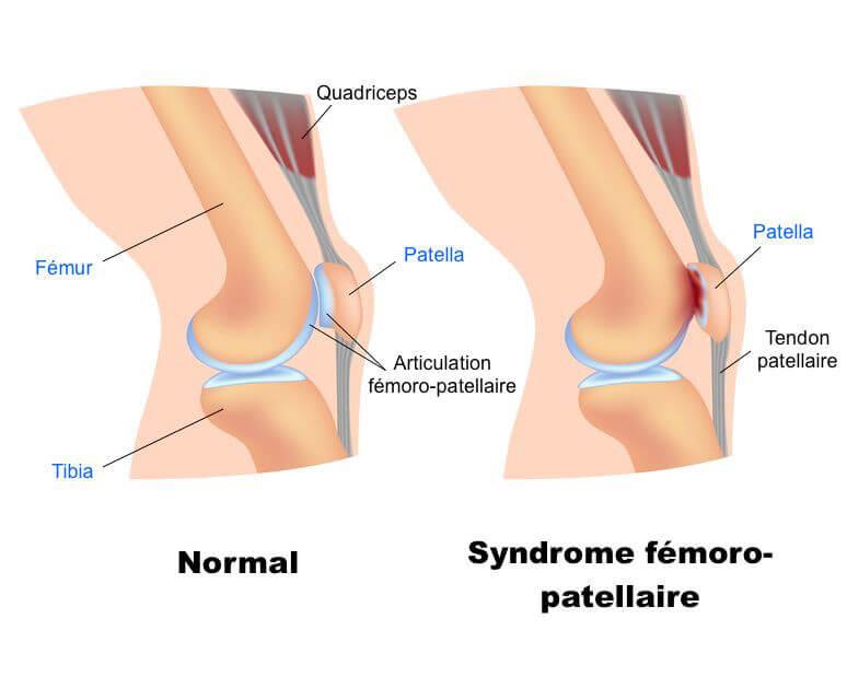 Image du syndrome femoro-patellaire