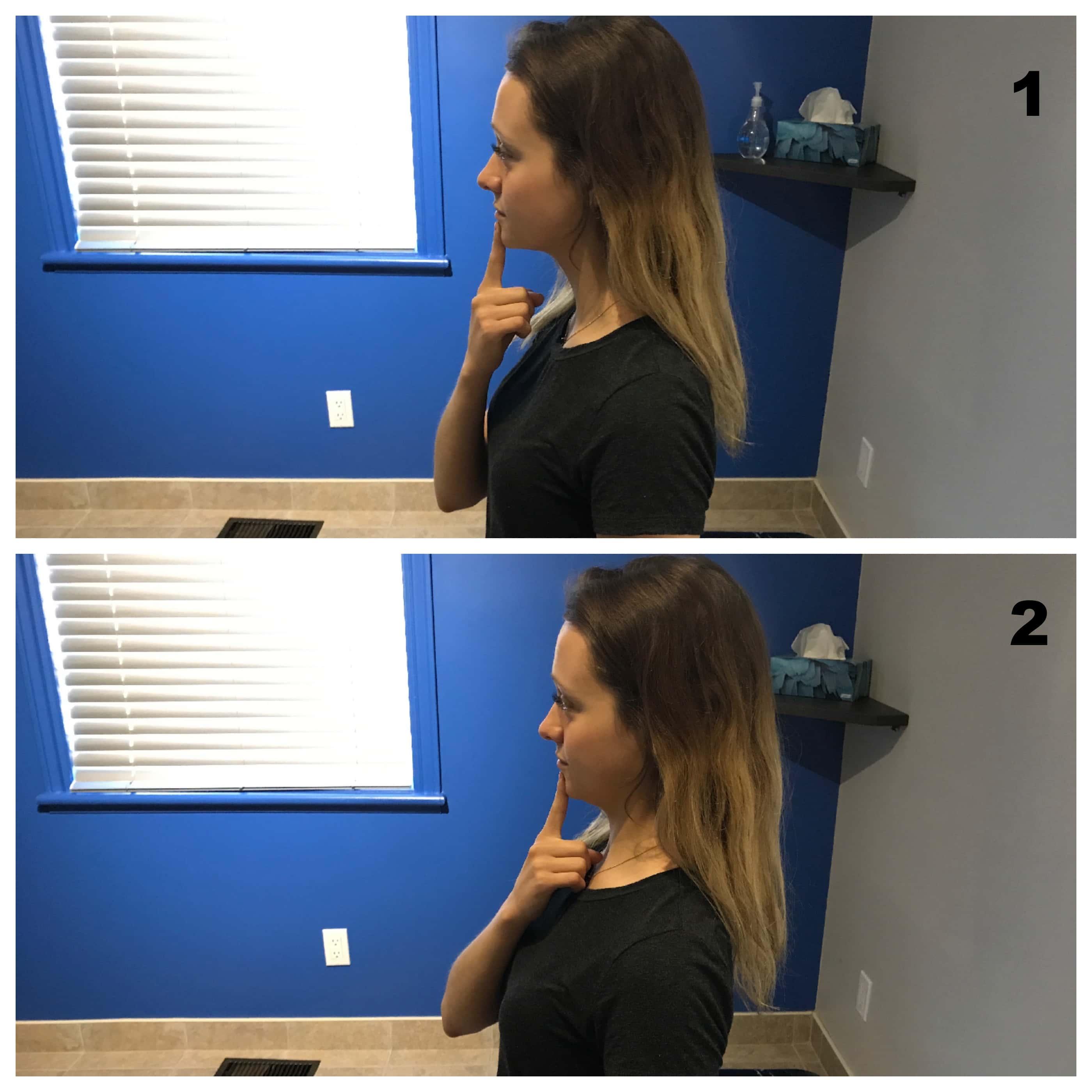 Retraction du cou pour hernie discale cervicale