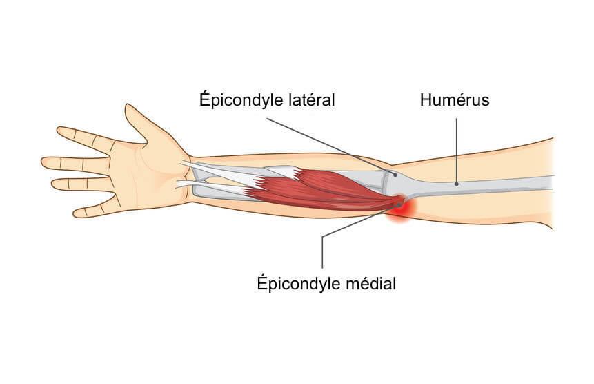 Symptome epitrochleite
