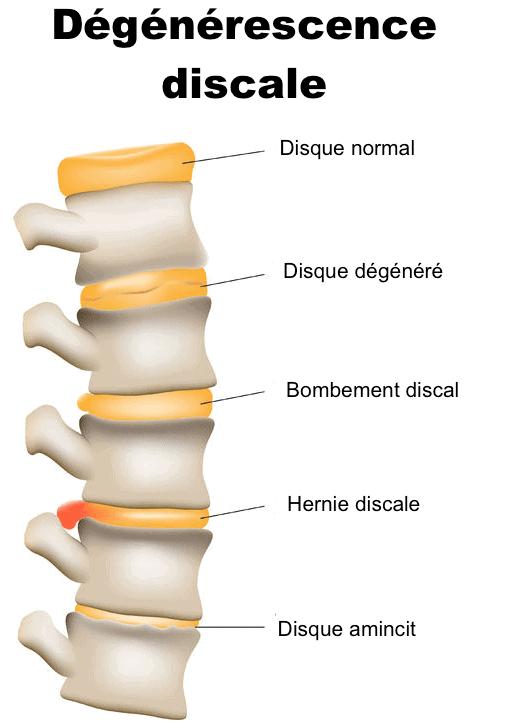 hernie discale causes sympt mes et traitement de l 39 hernie discale. Black Bedroom Furniture Sets. Home Design Ideas