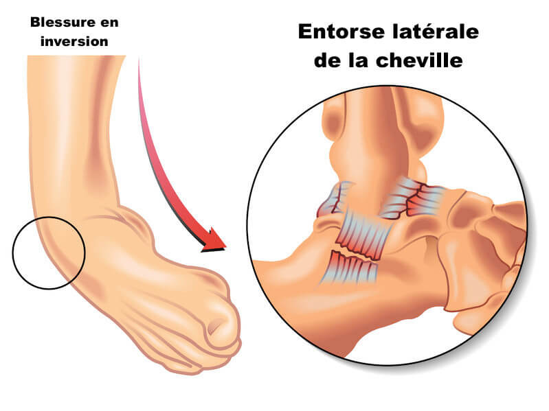 Entorse cheville inversion
